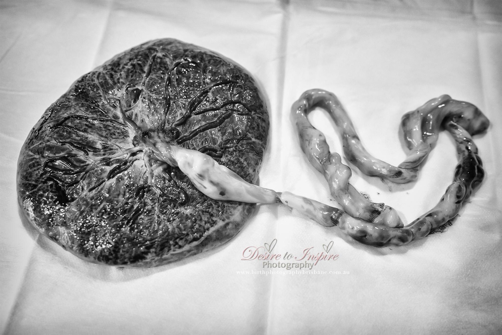 , Brisbane Birth Photography – Jeremy's Birth Story, Brisbane Birth Photography