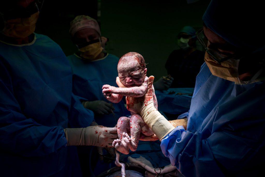 , Paris's Birth experience, Brisbane Birth Photography